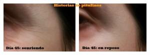 fotomontaje45